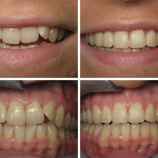 Teeth Before & After