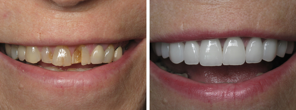 Broken Teeth Before and After
